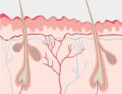Badedermatitis - Hautkrankheit