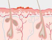 Gürtelrose - Hautkrankheit