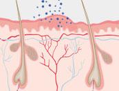 Latexallergie - Hautkrankheit