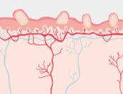 Masern - Hautkrankheit