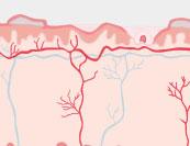 Mycosis Fungoides - Hautkrankheit
