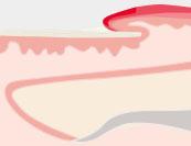 Nagelbettentzuendung - Hautkrankheit