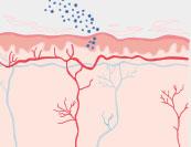 Neurodermitis - Hautkrankheit