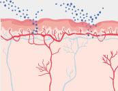 Scheidenpilz - Hautkrankheit