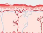 Windeldermatitis - Hautkrankheit