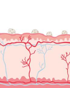 Bild von Herpes - Illustriert