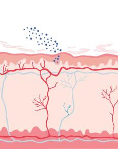 Bild von Neurodermitis - Illustriert