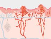 Feigwarzen - Hautkrankheit