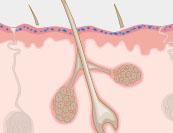 Hautpilz - Hautkrankheit