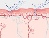 Scheidenenetzündung - Hautkrankheit