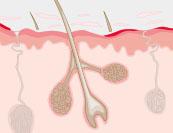 Schuppenflechte - Hautkrankheit