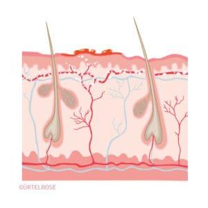 Gürtelrose - Hautkrankheit. Ein Querschnitt durch die Haut als Illustration.