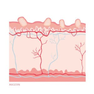 Masern - Hautkrankheit. Ein Querschnitt durch die Haut als Illustration.