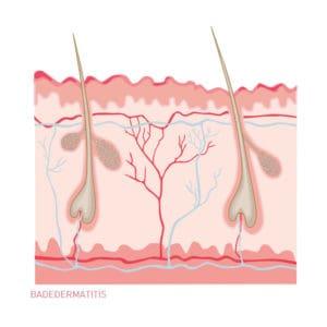 Badedermatitis - Hautkrankheit. Ein Querschnitt durch die Haut als Illustration.